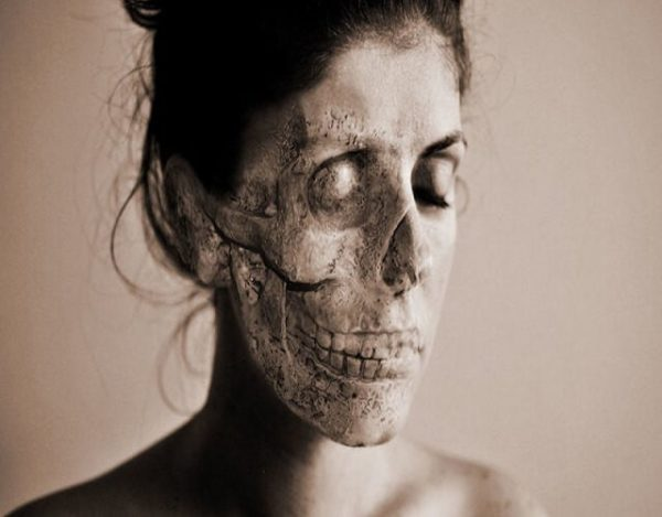 Síndrome del cadáver ambulante