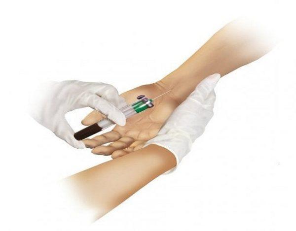 Gasometría arterial: qué es y para qué se usa