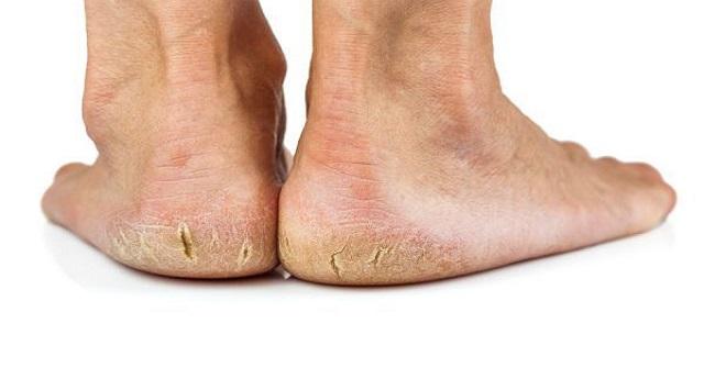 Grietas en los pies